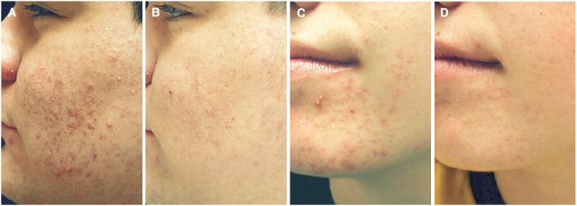 Before-and-After-Pics-of-Acne-Microdermabrasion-lloyd-et-al-640x229